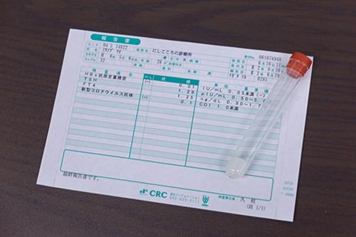 スタッフの新型コロナウイルス抗体検査